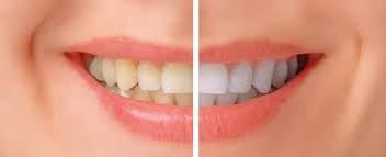 Sbiancamento denti – BLEACHING